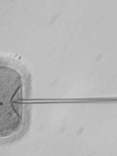 Insémination d'un ovule au microscope