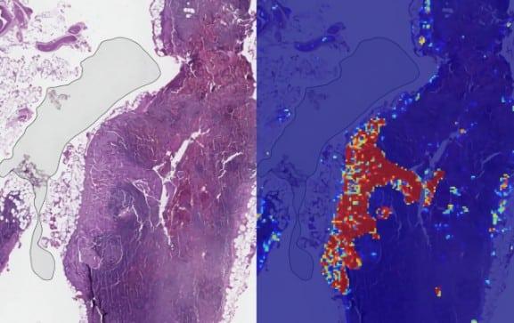 cancer-IA-deepmind