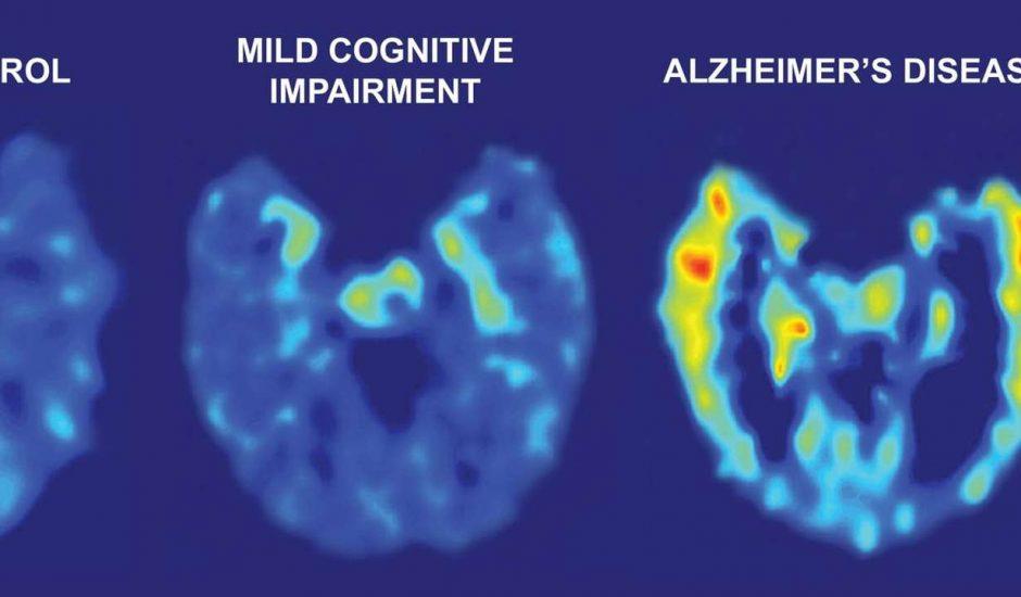 Des chercheurs d'Université de San Francisco ont créé une IA qui peut détecter les premiers signes d'Alzheimer avec 6 ans d'avance sur un diagnostic clinique