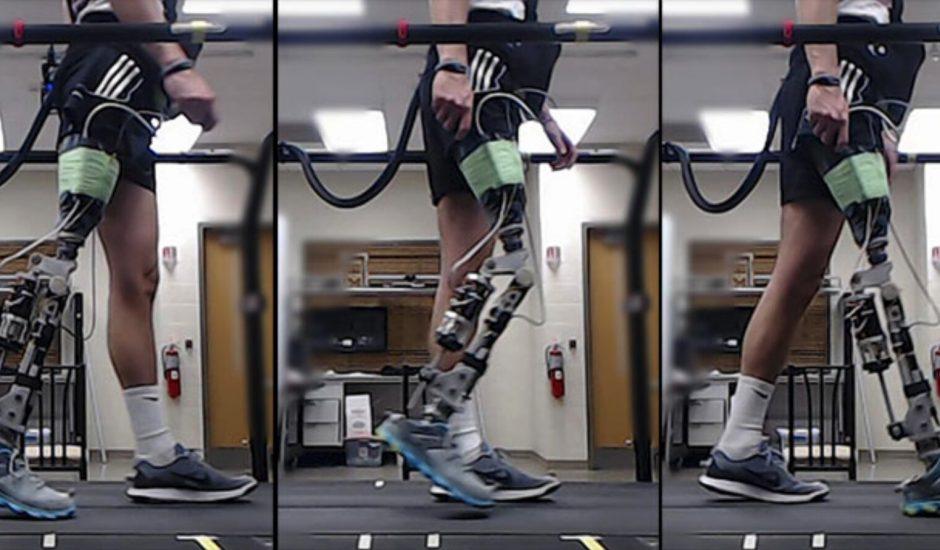 Une IA permet aux handicapés de marcher en quelques minutes avec leur prothèse.