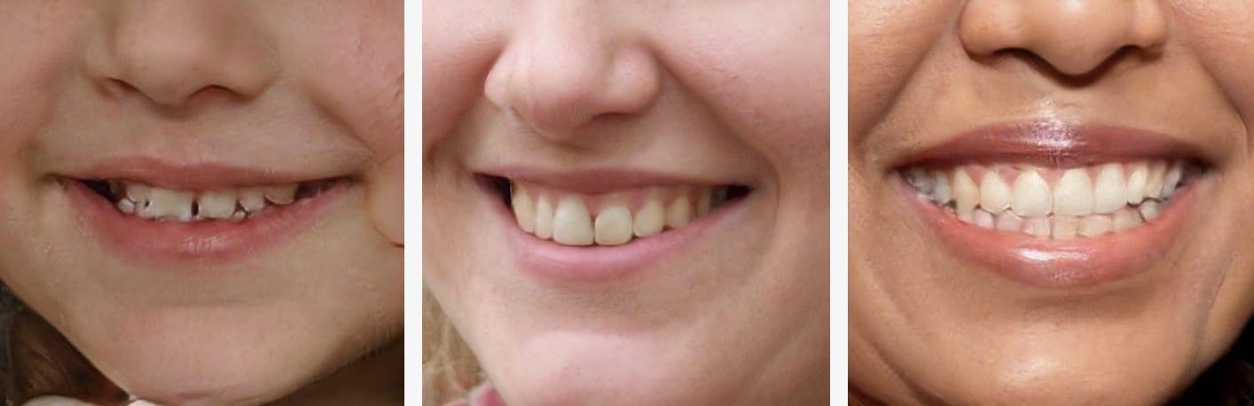 capture de dents fausses