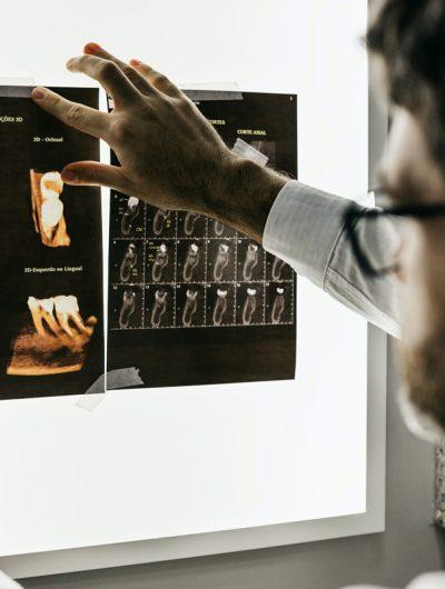 Un expert regardant une radiographie