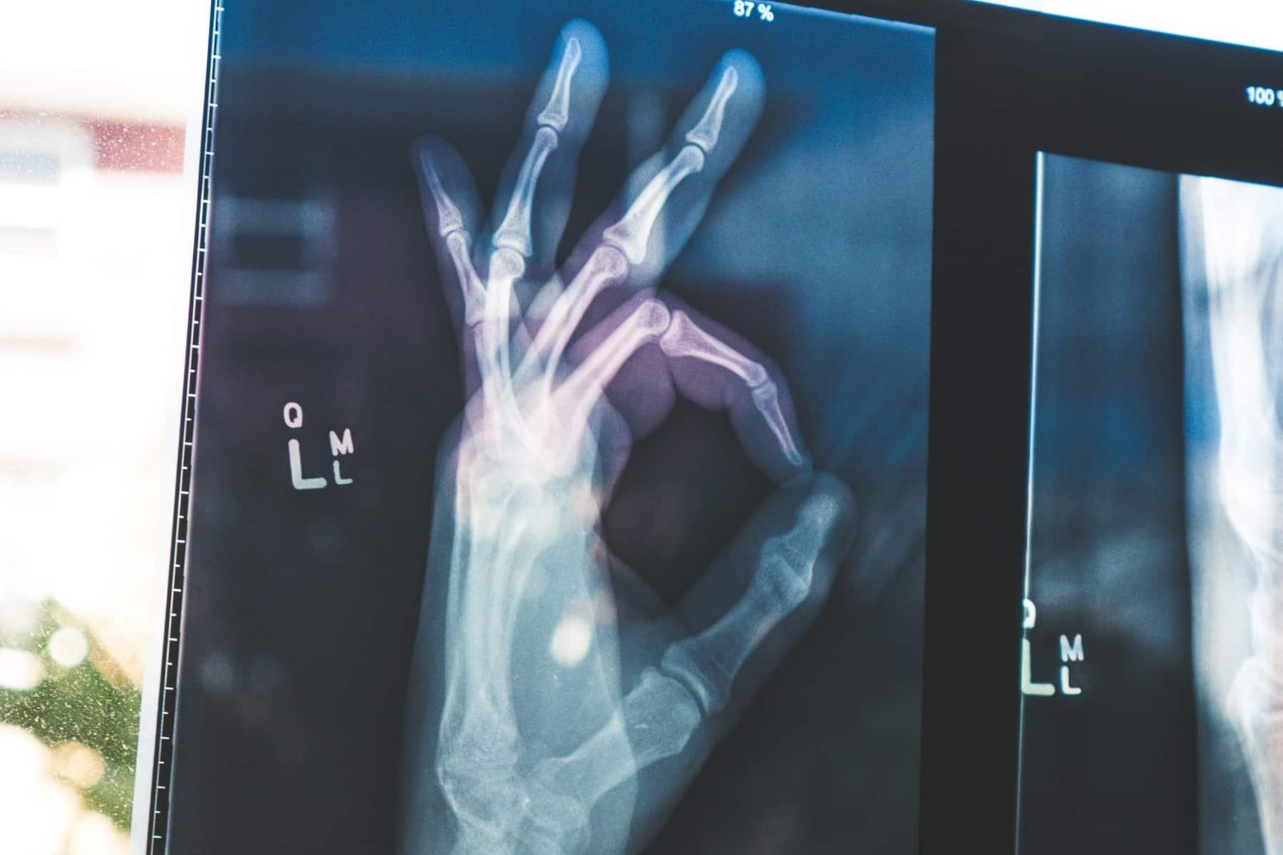 GE Healthcare s'est associé à AZmed pour proposer un nouvel outil de deep learning dans sa suite de solutions médicales.